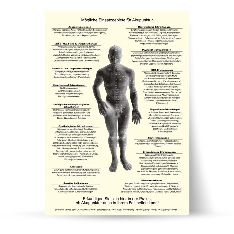 Wartezimmerposter Akupunktur
